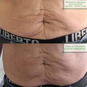 Relâchement ventre : traitement par Radiofrequence